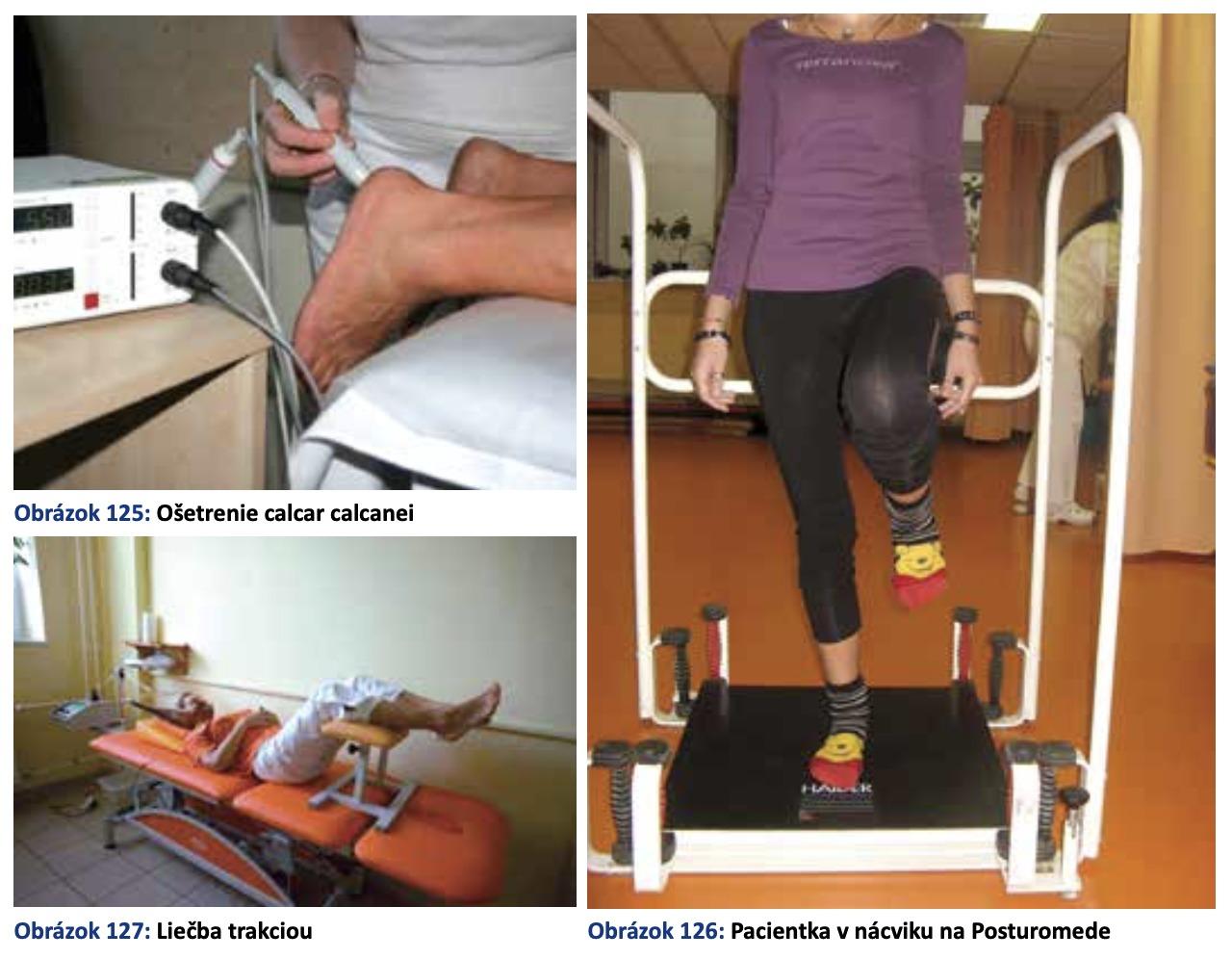 Špecializovaná nemocnicapre ortopedickú protetiku Bratislava