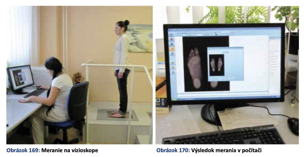 vizioskop