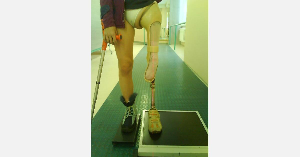 Preberanie privykacej protézy